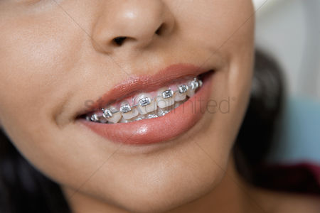 Girl : Teenage girl  14-16  wearing teeth braces  close-up