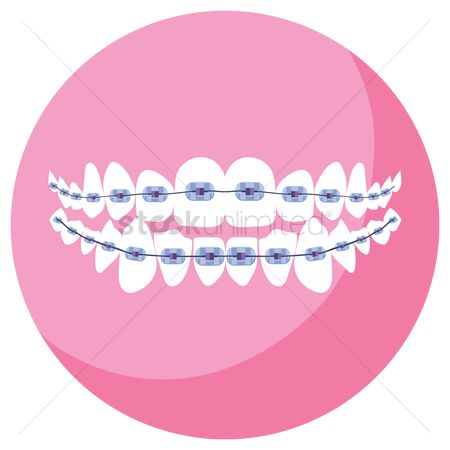 Tooth with braces : Dental braces