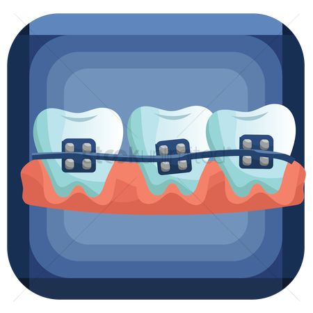 Tooth with braces : Teeth with braces