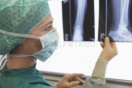 Expertise : Radiologist examining x-ray of leg close up